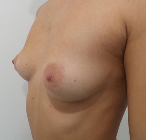 Before augmentation #2