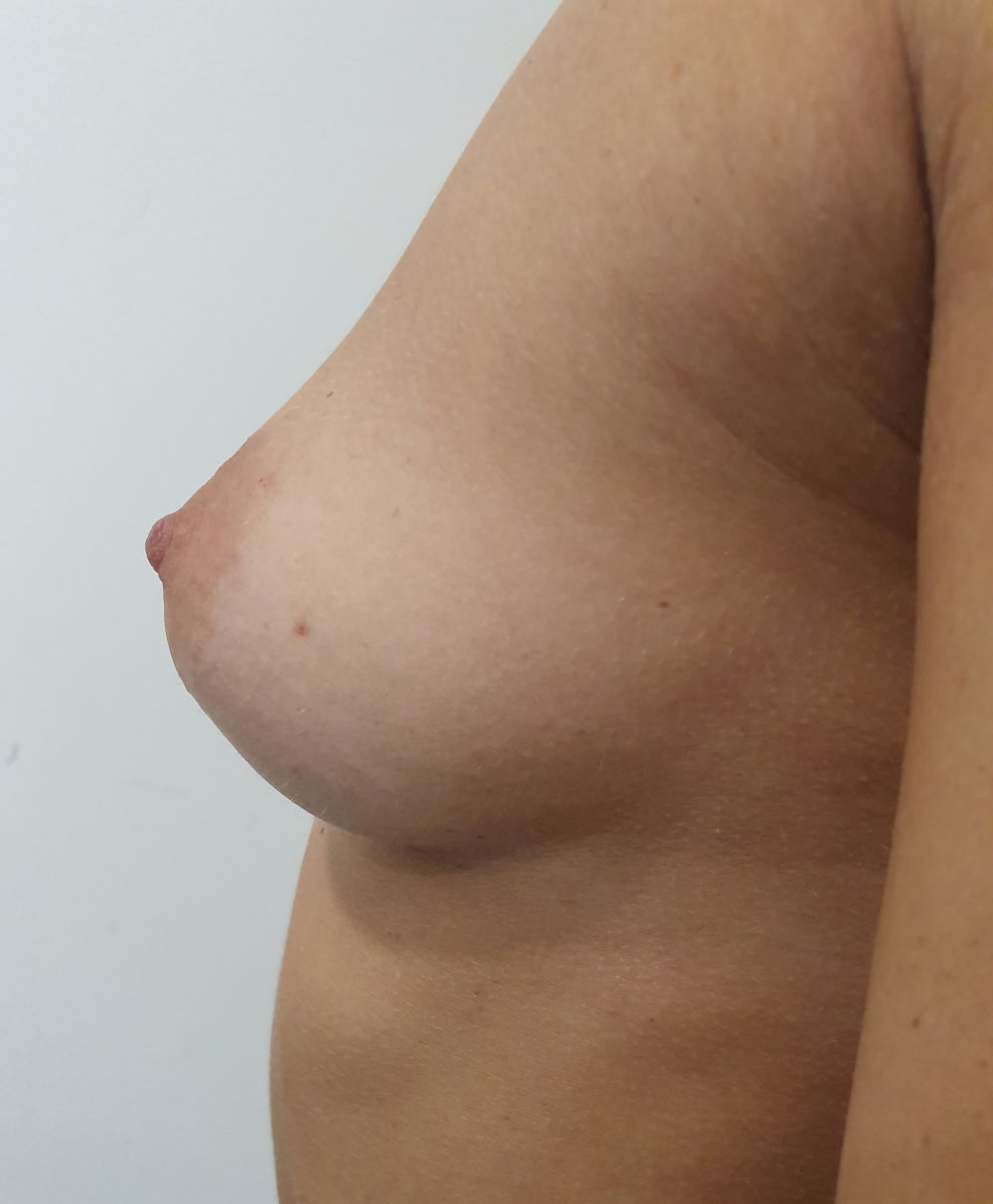 Before augmentation #3